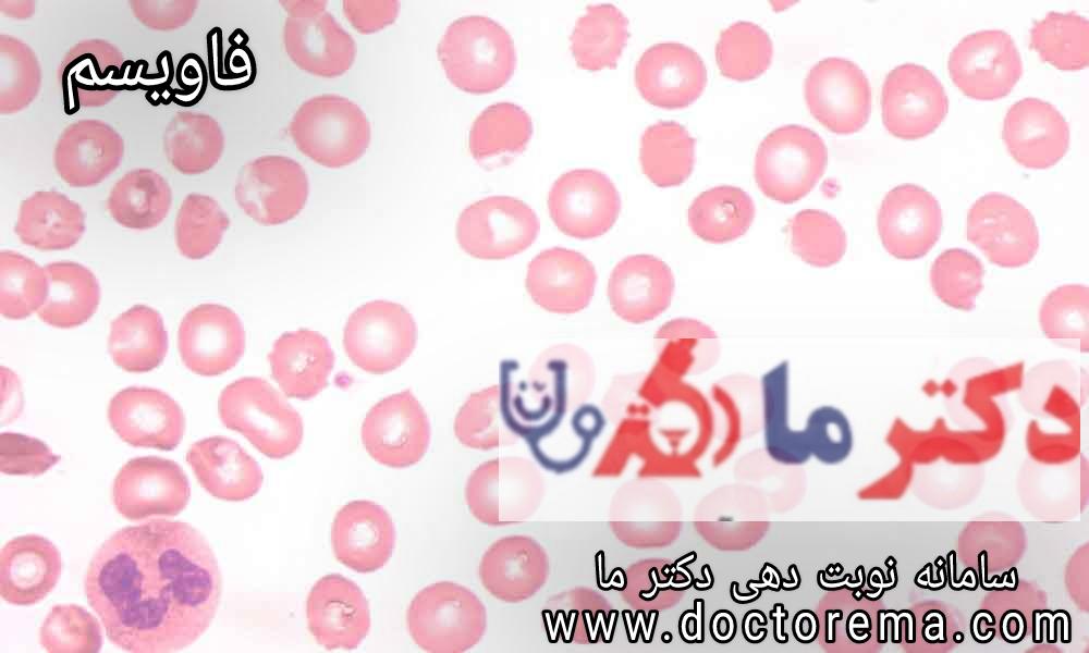 بیماری فاویسم چیست؟ علت آن چیست؟ روش های درمان آن چیست؟