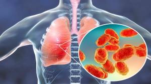 پنومونی باکتریایی چیست؟
