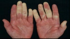 بیماری رینود چیست؟